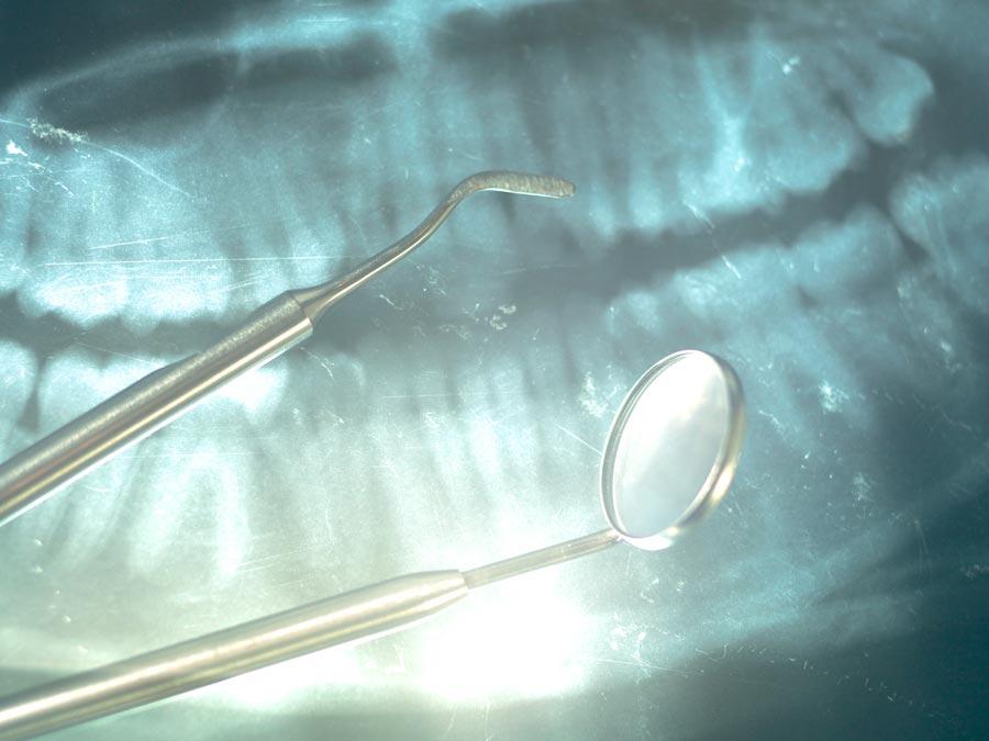 Parodontologia dello studio dentistico spaggiari