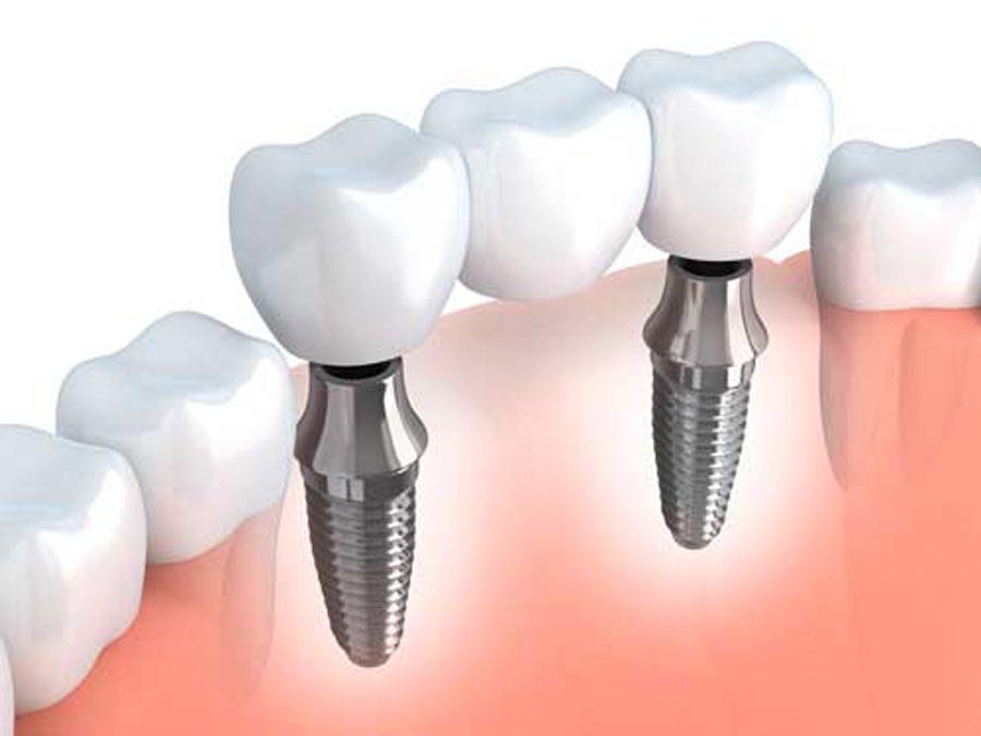 Implantologia dello studio dentistico spaggiari