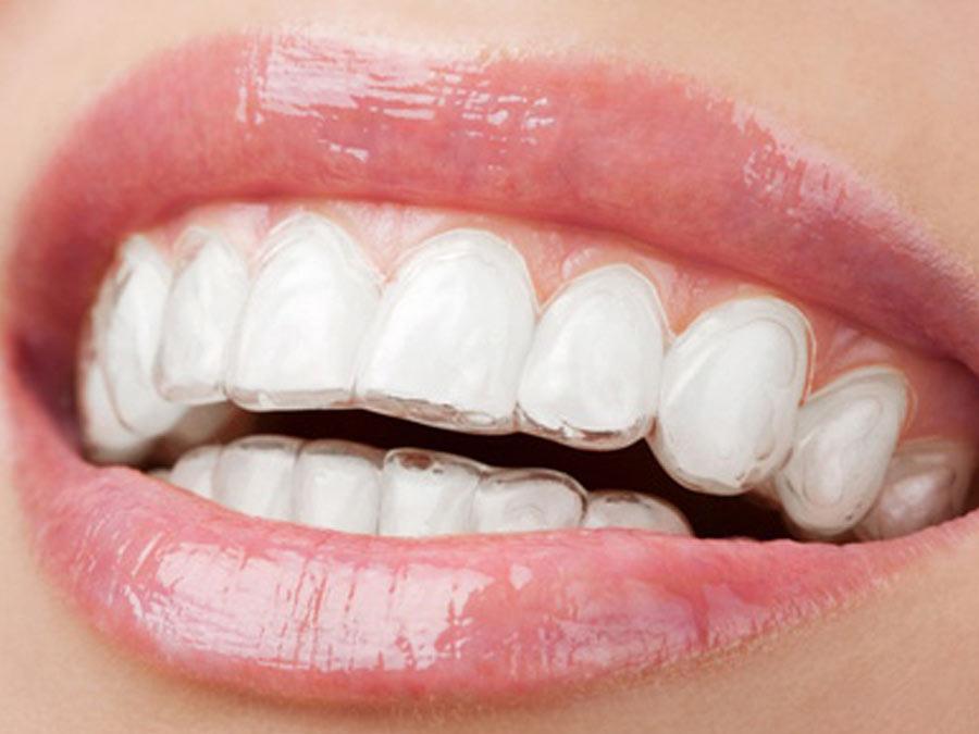 Ortodonzia invisibile dello studio dentistico spaggiari