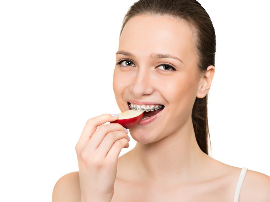 ortodonzia per adulti dello studio dentistico spaggiari